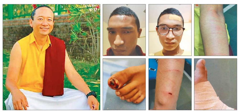 देहरादून घटना: विद्यार्थीको निःशुल्क उपचार गर्न नेपाल विद्यार्थी सङ्घको माग