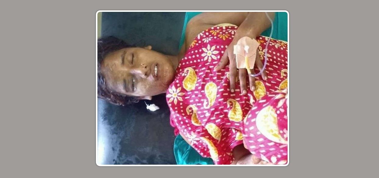 जनकपुरमा श्रीमतीमाथि एसिड प्रहार गर्ने श्रीमान् पक्राउ, अनुसन्धान शुरु